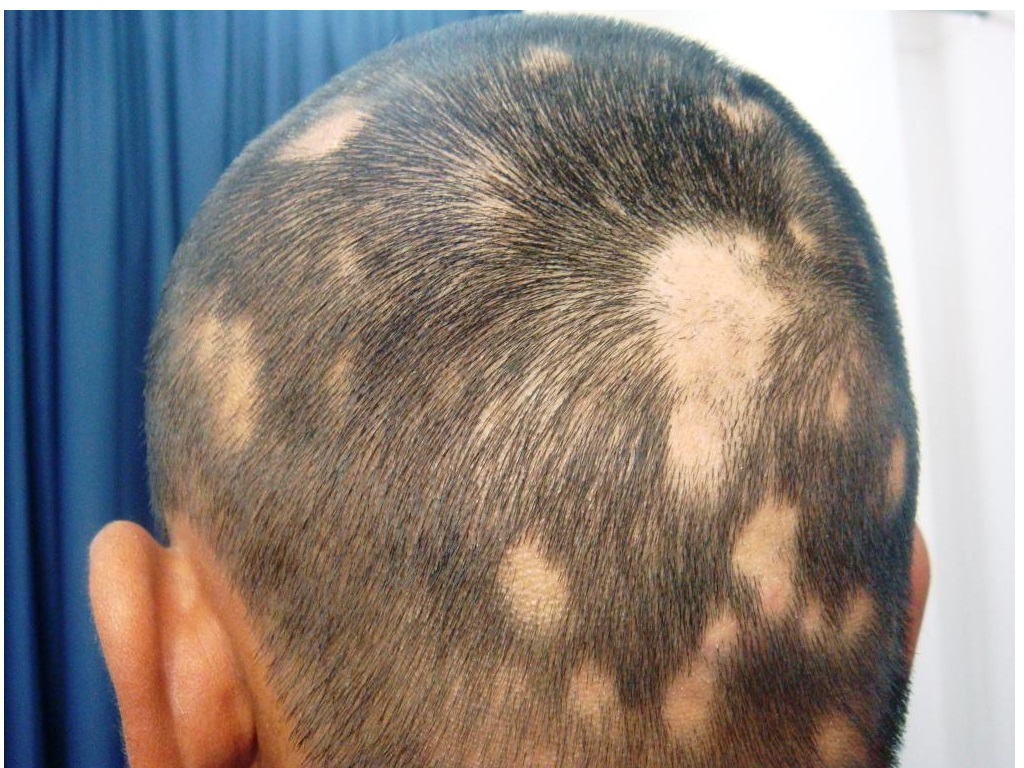 Blog Alopecia Areata
