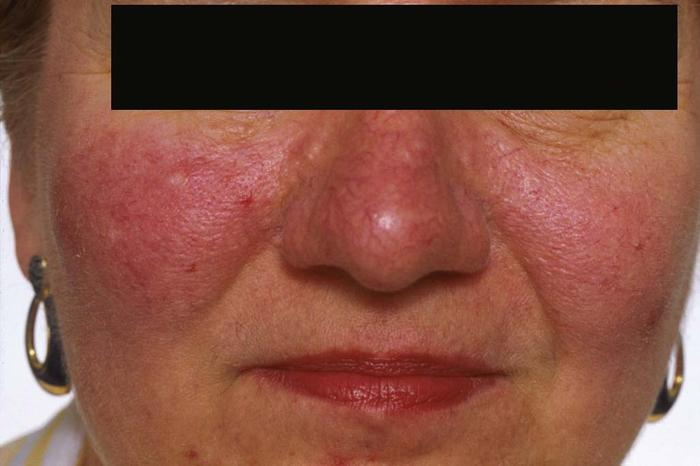 acne-rosacea-fig3 large
