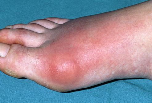 blog gout