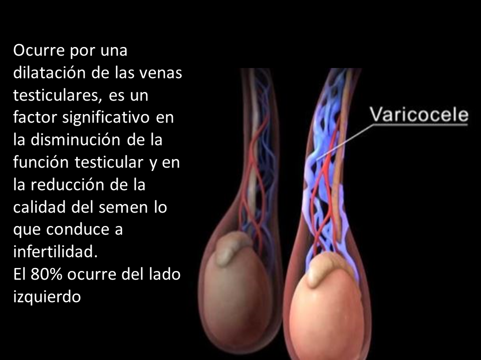 cirurgia de varicocele causa impotencia